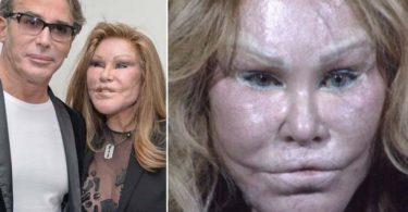 Jocelyn Wildenstein - worst plastic surgeries of popular celebrities